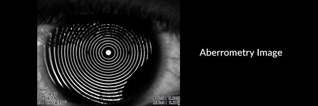 Aberrometry