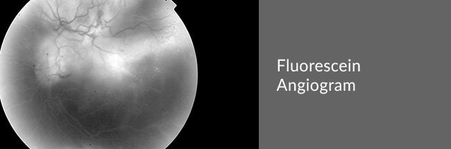Fluorescein Angiogram