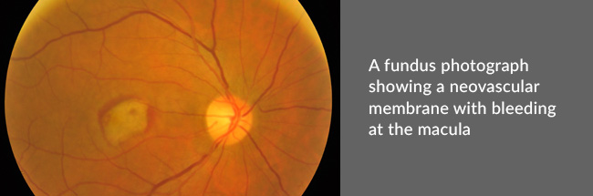 A fundus