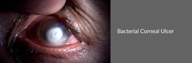 BacteriaCornealUlcer