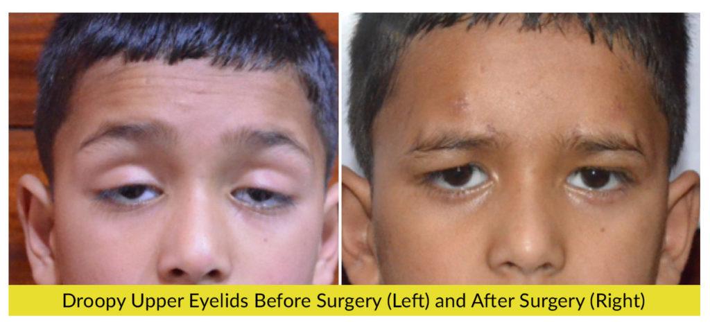 Eyelid Disorders - Amritsar Eye Clinic